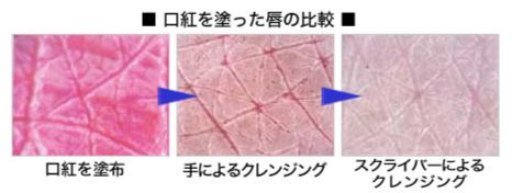 スキンスクライバーによる肌の変化